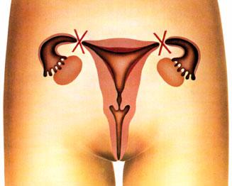 Impulso sexual por ligadura de trompas